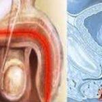 Негонорейный уретрит — симптомы, методы диагностики и лечения