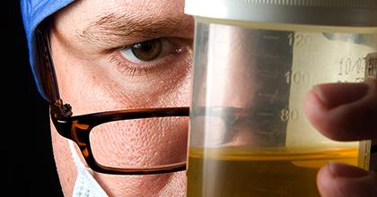 Анализ мочи при пиелонефрите