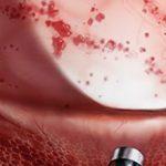 Буллезный цистит: причины, диагностика и лечение