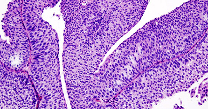 Переходноклеточный рак мочевого пузыря