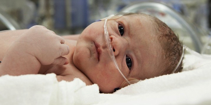 Малыш с кровоизлиянием
