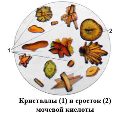 Кристаллы и сросток мочевой кислоты