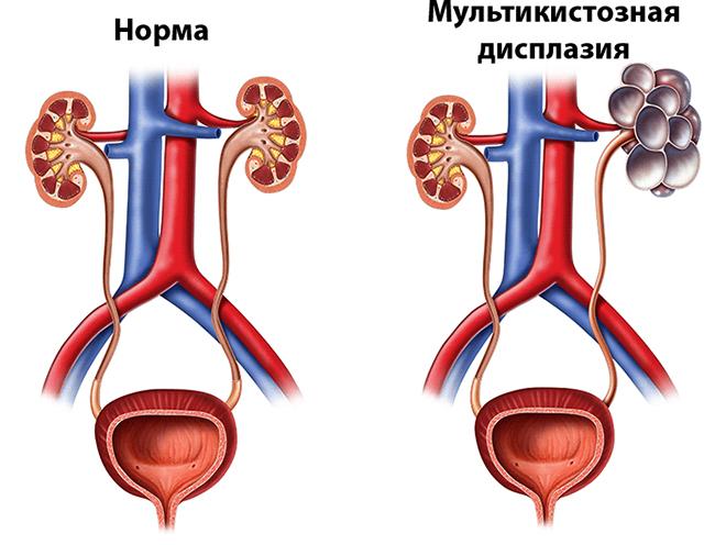 Норма и мультикистозная дисплазия
