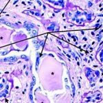 Миеломная нефропатия: причины, диагностика и лечение