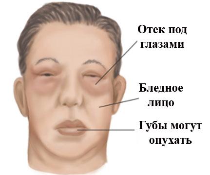 Симптомы нефротического синдрома
