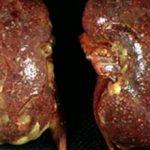 Пиелонефрит по мкб 10 — классификация болезни