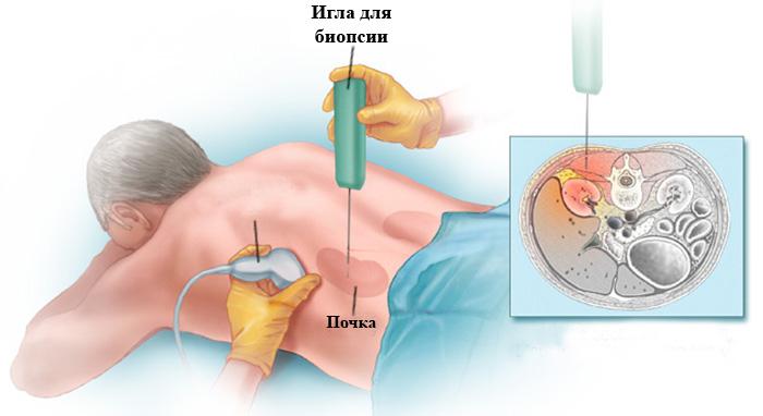 Проведение биопсии