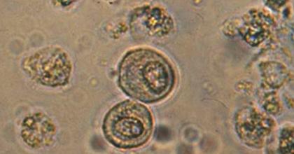 Эпителий плоский в моче при беременности